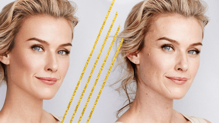 What Your Esthetician Wants You to Know About 'Perfect Skin'